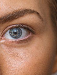 ten cu acnee, cosuri, fata frumoasa, ochi albastrii