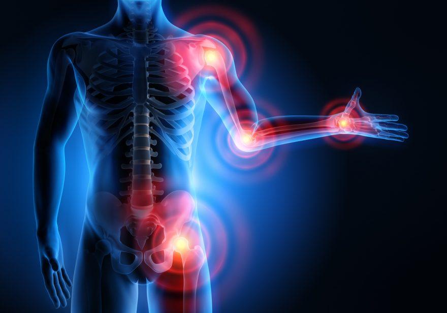artroza, cand articulatiile scartaie